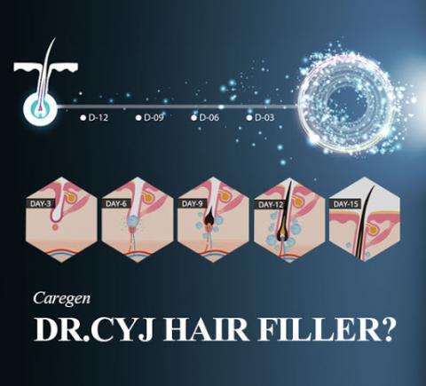 dr cyj hair filler haaruitval