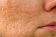 acne prp behandeling